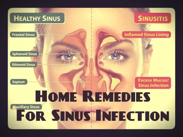 Homemade remedies for Sinus
