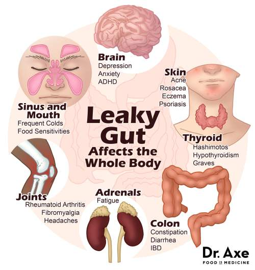 How Leaky Gut Affects the Whole Body | Used with permission of Dr. Axe | Real Food with Dana