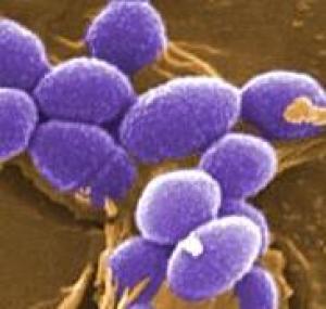probiotics and respiratory infection