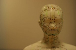 acupuncture treats Parkinson's