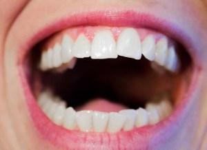 dry mouth xerostomia