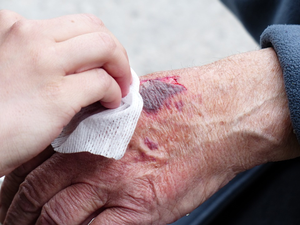 3 Ways To Best Help An Injured Loved One