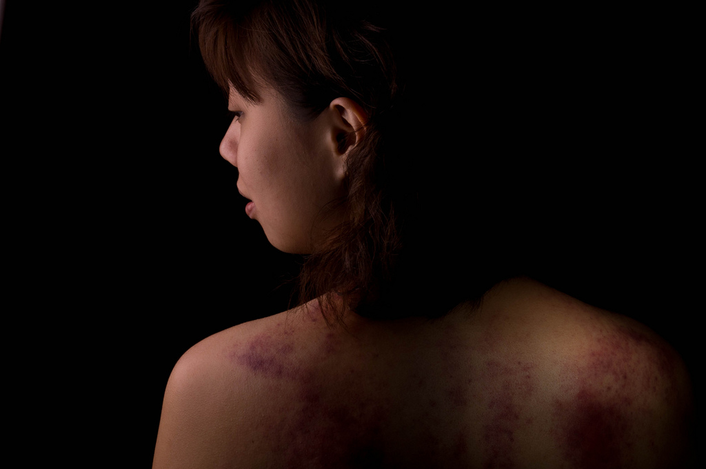 A woman with scars on her back