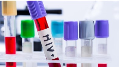 Photo of What should You do if You Get a Positive HIV Result?