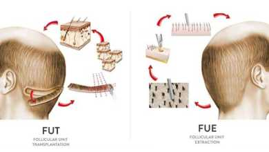 Photo of FUE VS. FUT: Which Type of Hair Transplant is Best for You?
