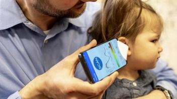 Makin Mudah, Cek Infeksi Telinga Kini Bisa dilakukan Lewat Smartphone