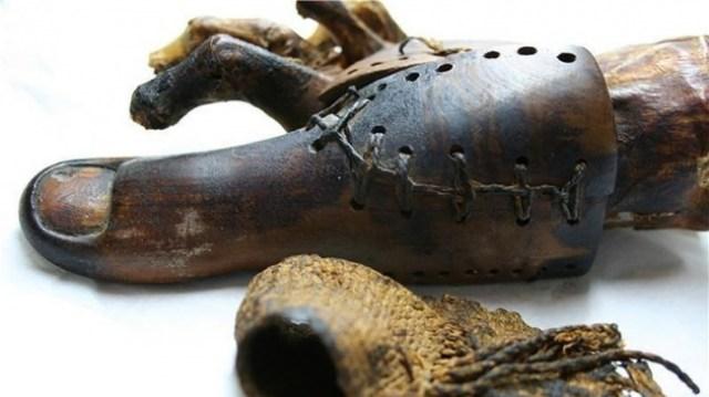 pprimer protesis