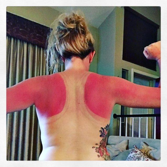 mujer con marcas de camiseta por quemaduras de sol