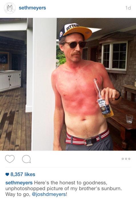 hombre con quemadura solar y una cerveza en la mano