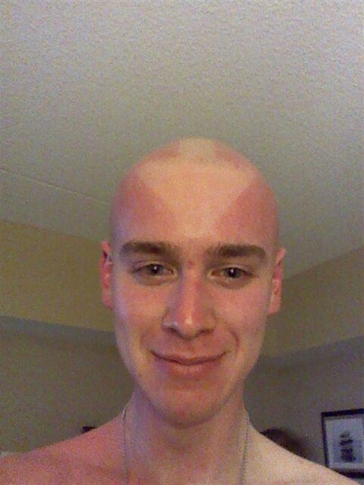 hombre con marca de un triángulo en la cabeza debido a quemadura solar