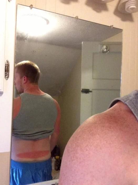hombre con quemadura solar delgada arriba del trasero