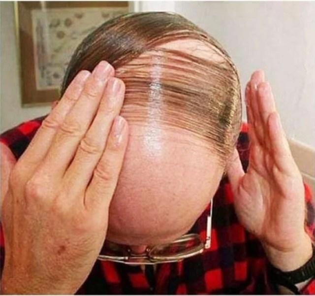 hombre peinandose pelos en la calvicie con gel