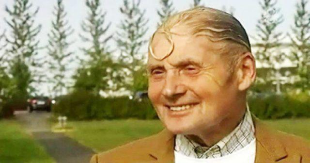 hombre pelado con un aro hecho de su copete