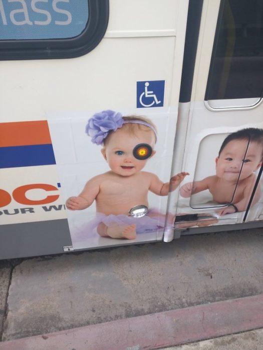 niña con ojo biónico