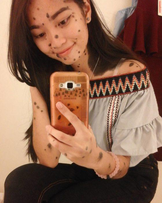 Evita celular fotografía verrugas