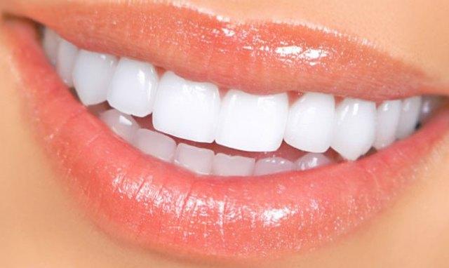 dentadura hermosa