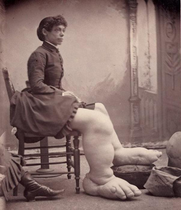 Mujer con pies enomres