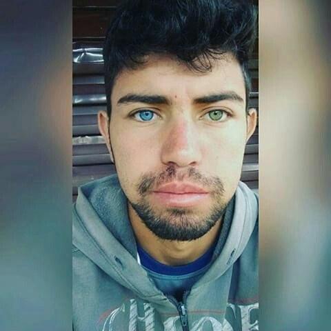 hombre ojos bicolor