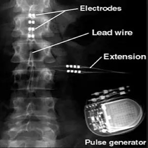 Spines and Disc Care Pack – Spinal Cord Problems