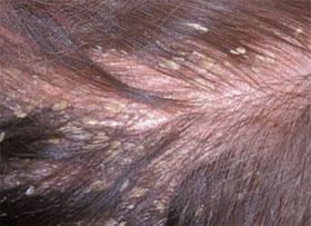Como se quita la seborrea del cuero cabelludo