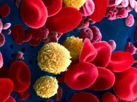 Studies: Cord Blood Works Vs. Leukemia
