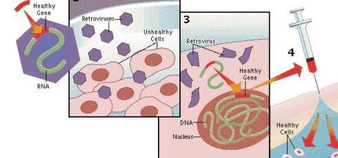 Gene Therapy Beats 'Bubble Boy' Disease