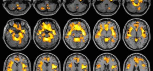 Substance abuse reduces brain volume in women