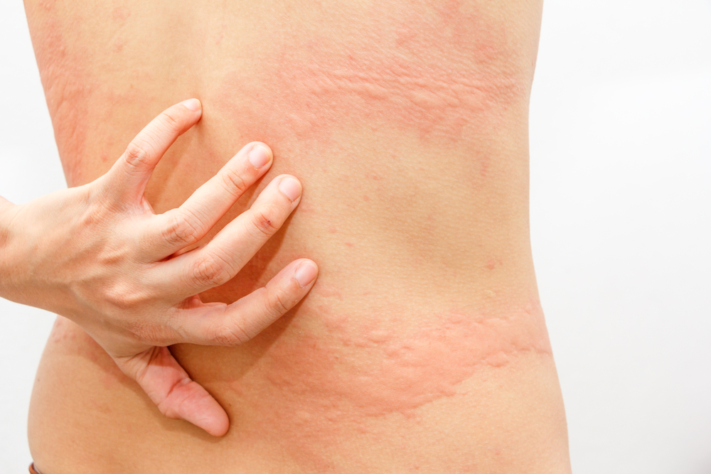 Urticaria and Fibromyalgia - Redorbit