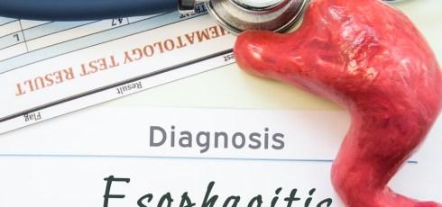 Esophagitis and Fibromyalgia