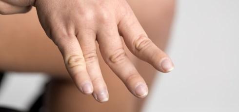 Spasticity and Fibromyalgia