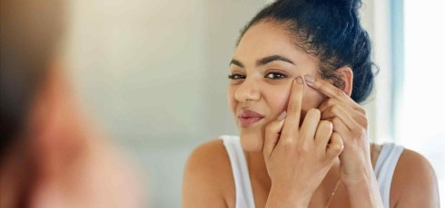 How to Remove Blackheads: Discover the 5 Best Home Remedies