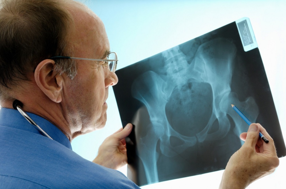 How Long Does Hip Replacement Surgery Last and What Can You