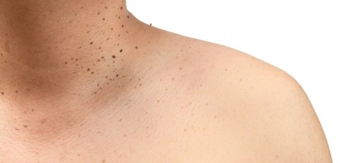 Why Do People Get Skin Tags: A Generally Harmless Nuisance