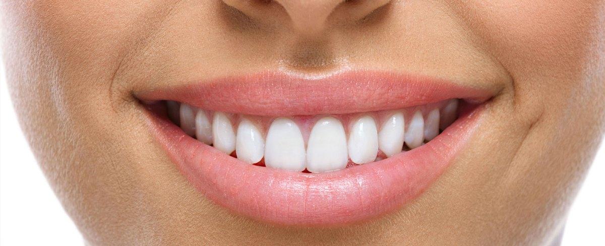 dental-crowns.jpg?fit=1200%2C488&ssl=1