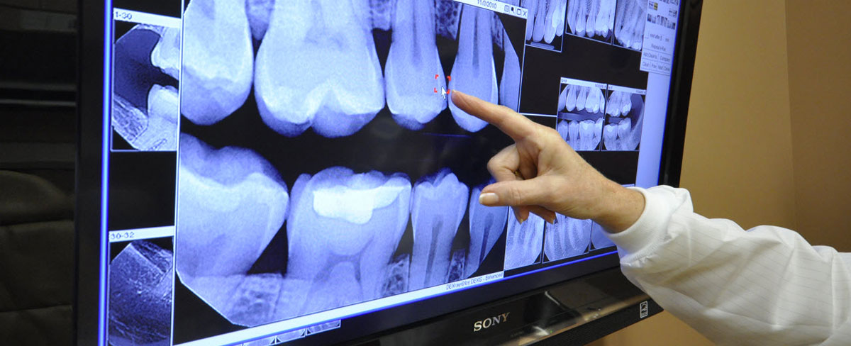 digital-dental-x-ray.jpg?fit=1200%2C488&ssl=1