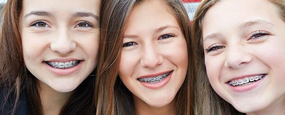 traditional-braces.jpg?fit=960%2C390&ssl=1