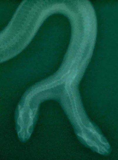 X-Ray of two-headed snake