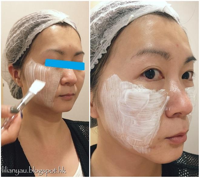 Lilian分享第二代童顏針療程Derma Veil | Reface Clinic 香港微整形中心 | Reface Clinic 香港輪廓塑造專家