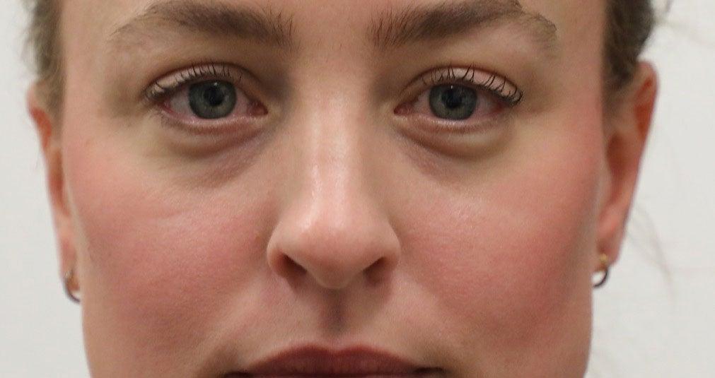 """Tear Trough Filler"" gegen dunkle Augenringe: mein Fazit"