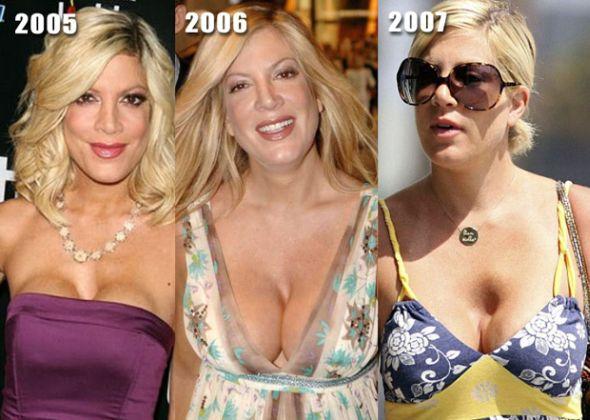 Tori-Spelling-Breast-Implants-Gone-Bad