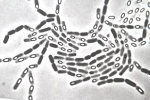 So sehen die bodenbewohnenden Bacillii Mycoides aus.