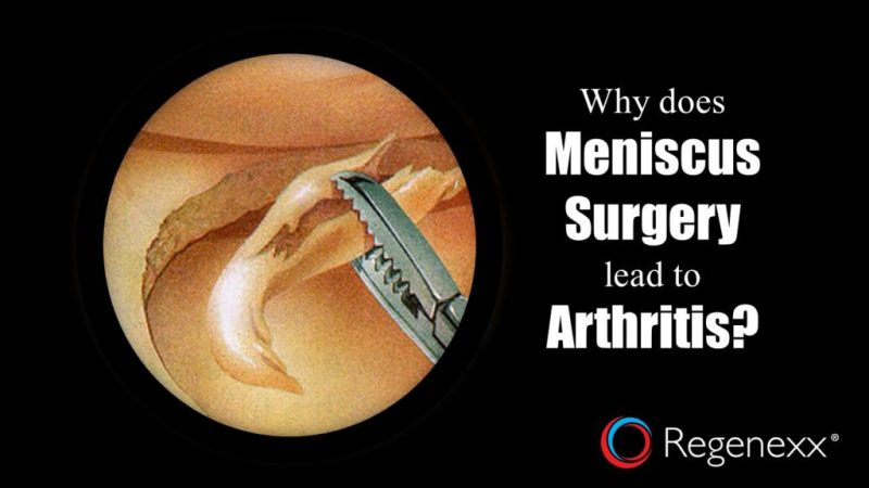 knee meniscus surgery