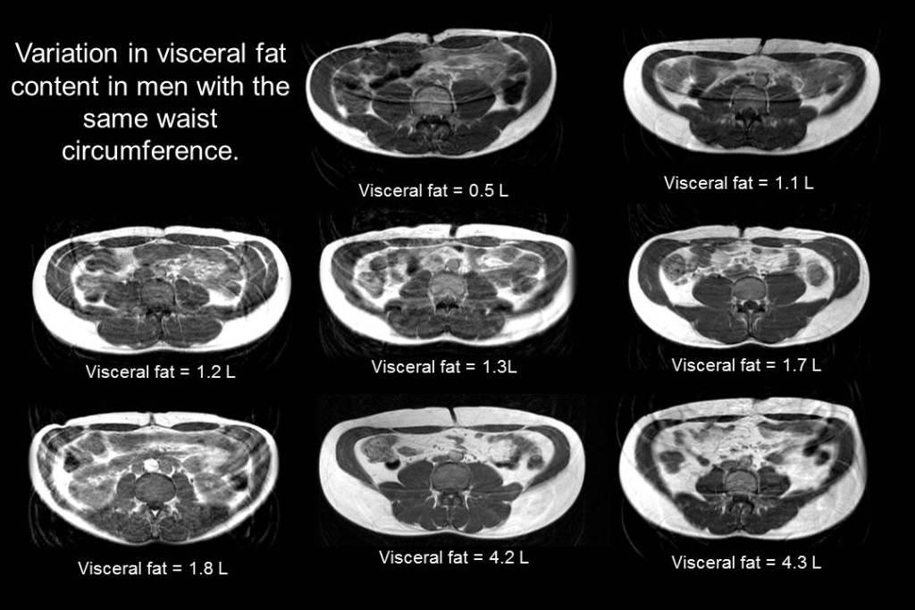 Schéma représentant une vue en coupe de 8 abdomens d'homme vus par IRM, présentant une taille identique mais une viariation dans la quantité de graisse viscérale et de graisse sous-cutanée qu'ils abritent.