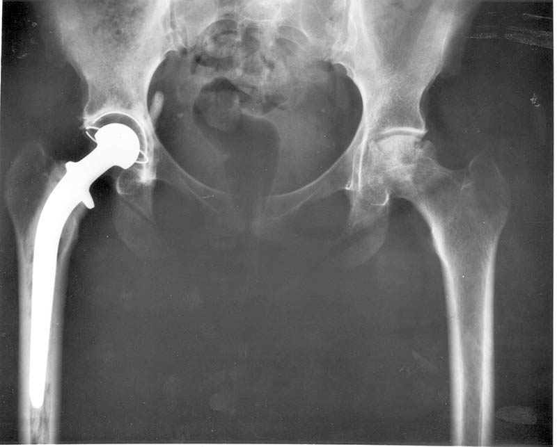 Arthrose : Radiographie d'une hanche ayant subi une opération chirurgicale de pose de prothèse sur le côté droit suite à un problème grave d'arthrose.