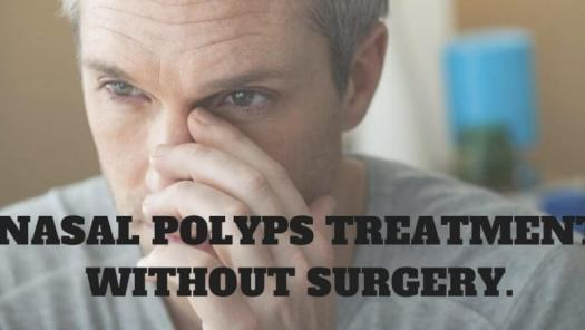 nasal polyps treatment without surgery and a man holding his nose in the background