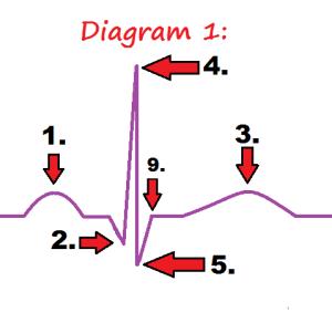 EKG PQRST Rhythm Strip Wave Quiz | Anatomy & Pathophysiology