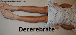 images for decorticate posturing vs decerebrate
