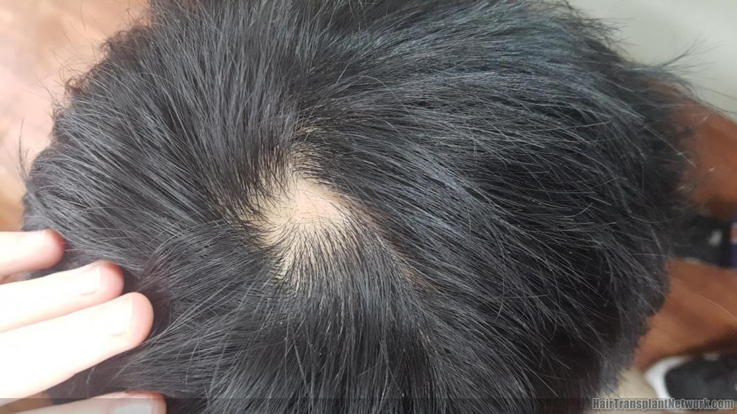 Tokeo la picha la hair losss