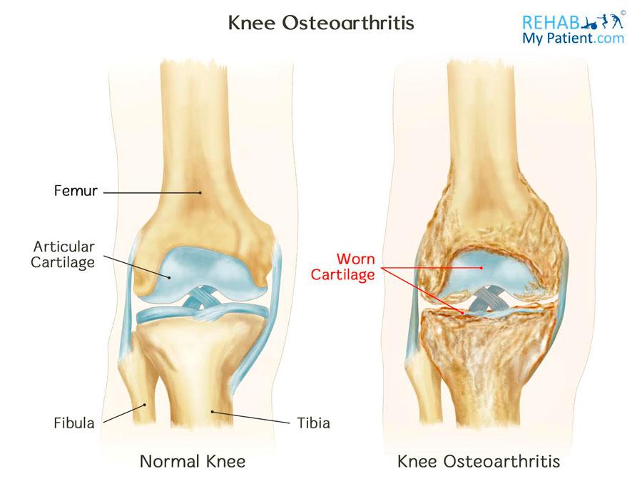 Posterior Knee Anatomy Ligaments