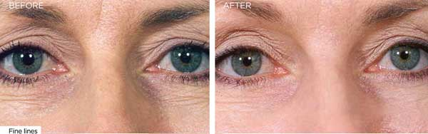 Collagen stimulation therapy, Rejuven, Stokesley